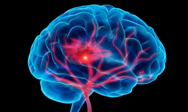Beyinde Damarsal Bozukluklar (Arteriovenöz Malformasyon, Kavernom)