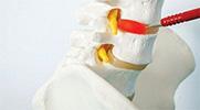 'Tam Kapalı' bel fıtığı ameliyatı