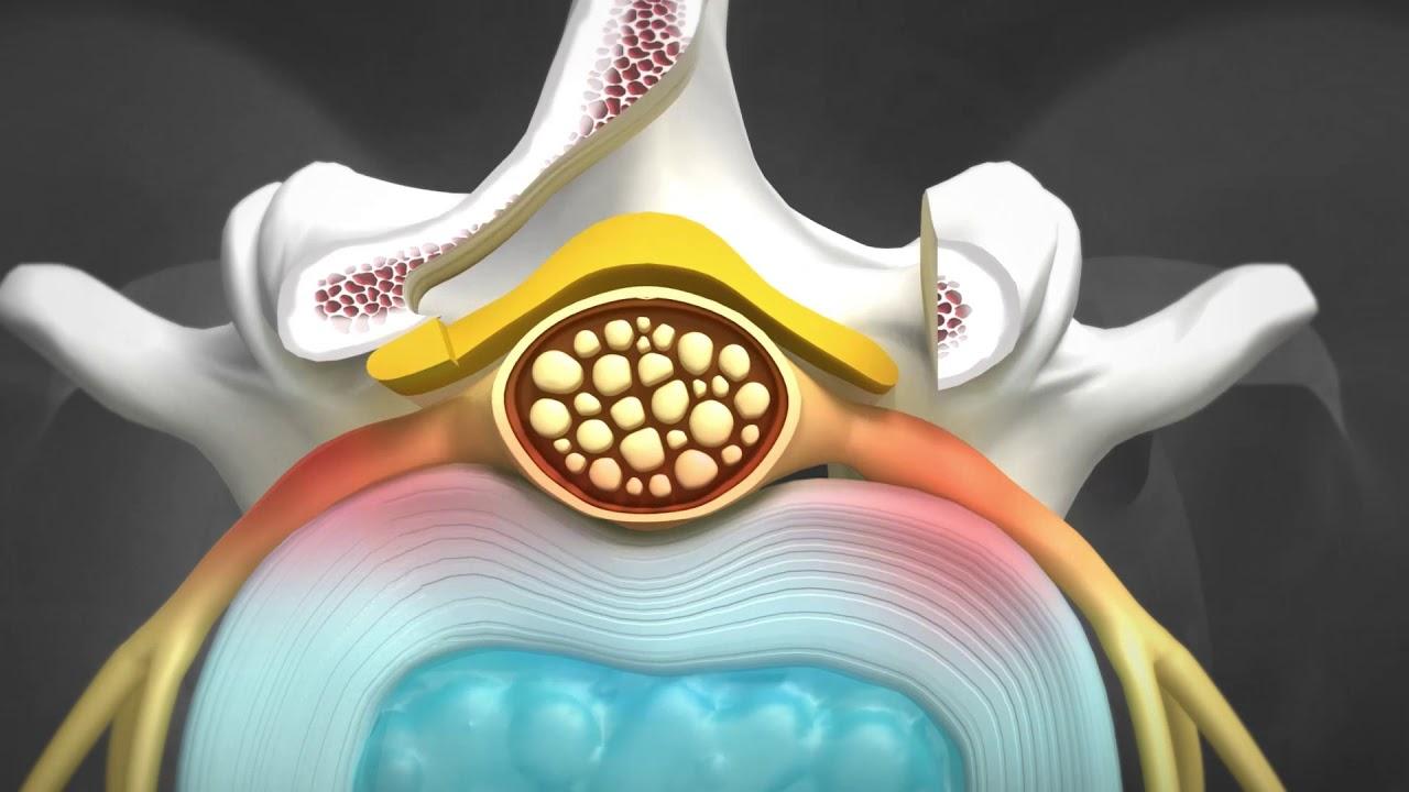 Unilateral Biportal Endoskopik (UBE) Omurga Cerrahisi